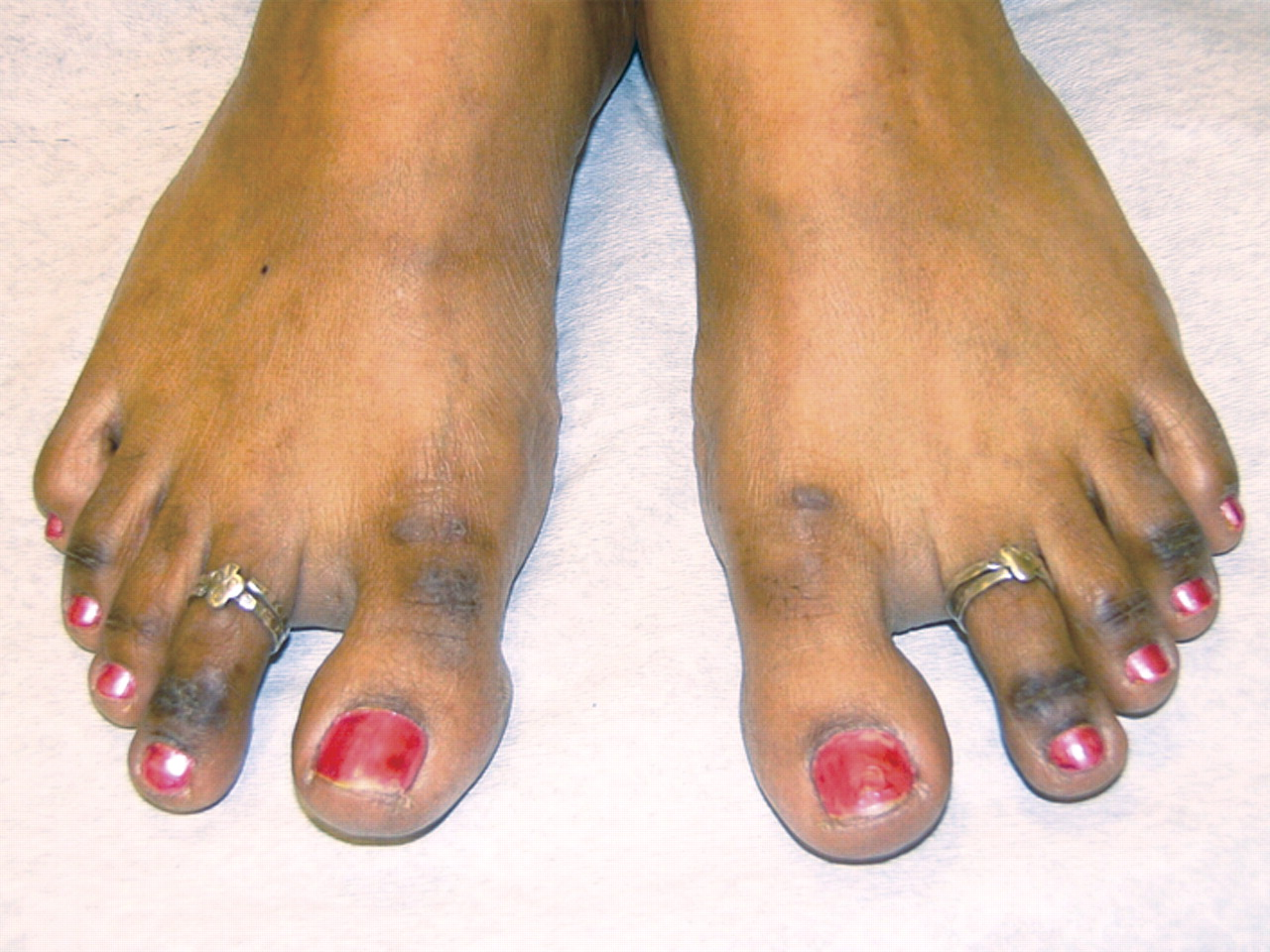 Cutaneous lesions and vitamin B12 deficiency | The College ... B12 Deficiency Skin