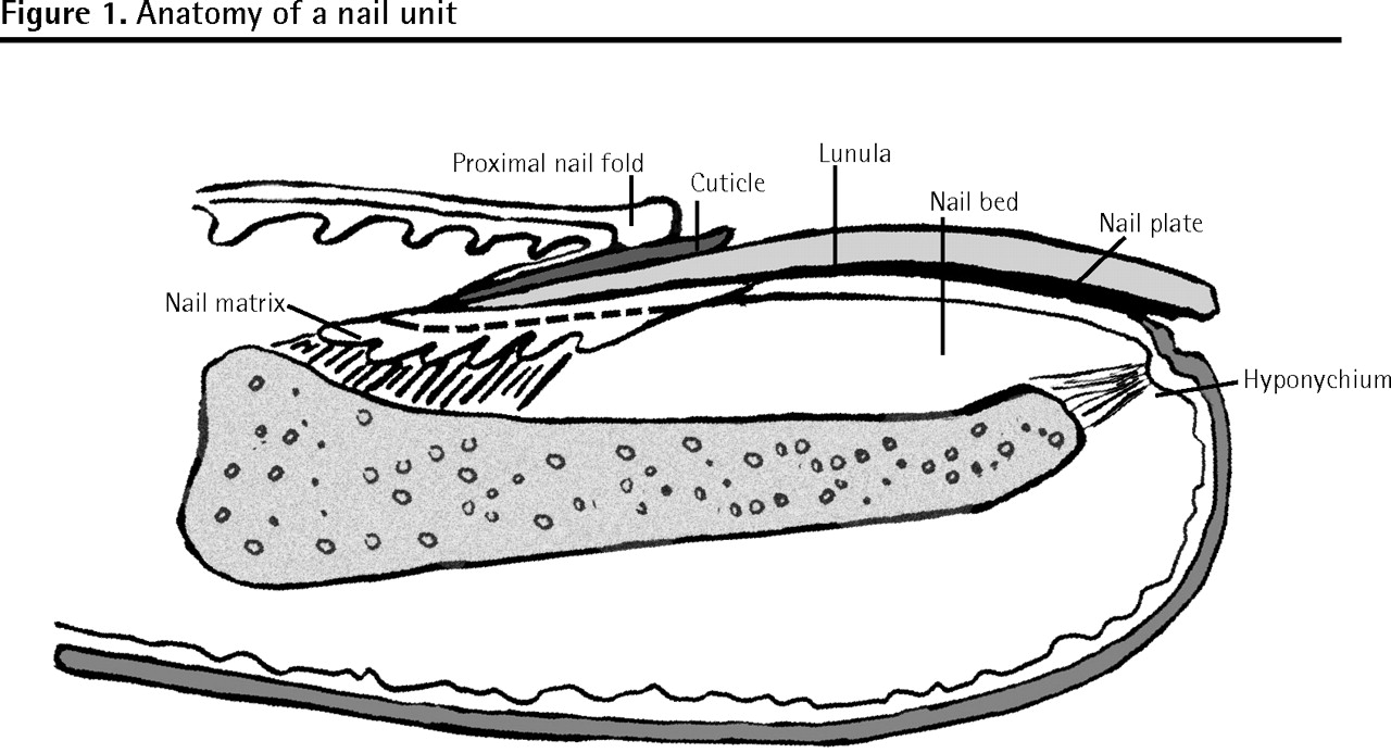 Common nail changes and disorders in older people | The College of ...