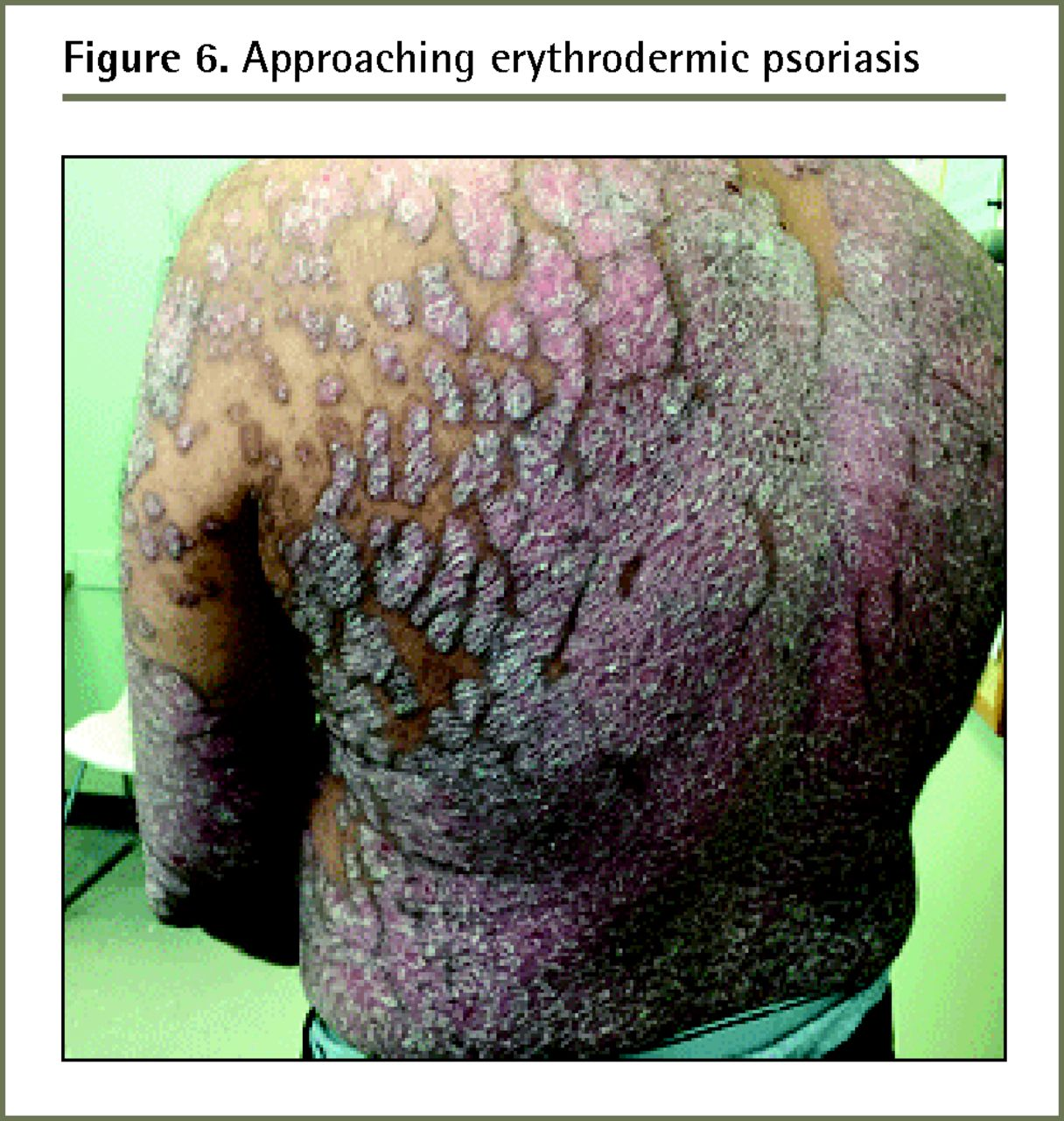 Diagnosis And Management Of Psoriasis The College Of