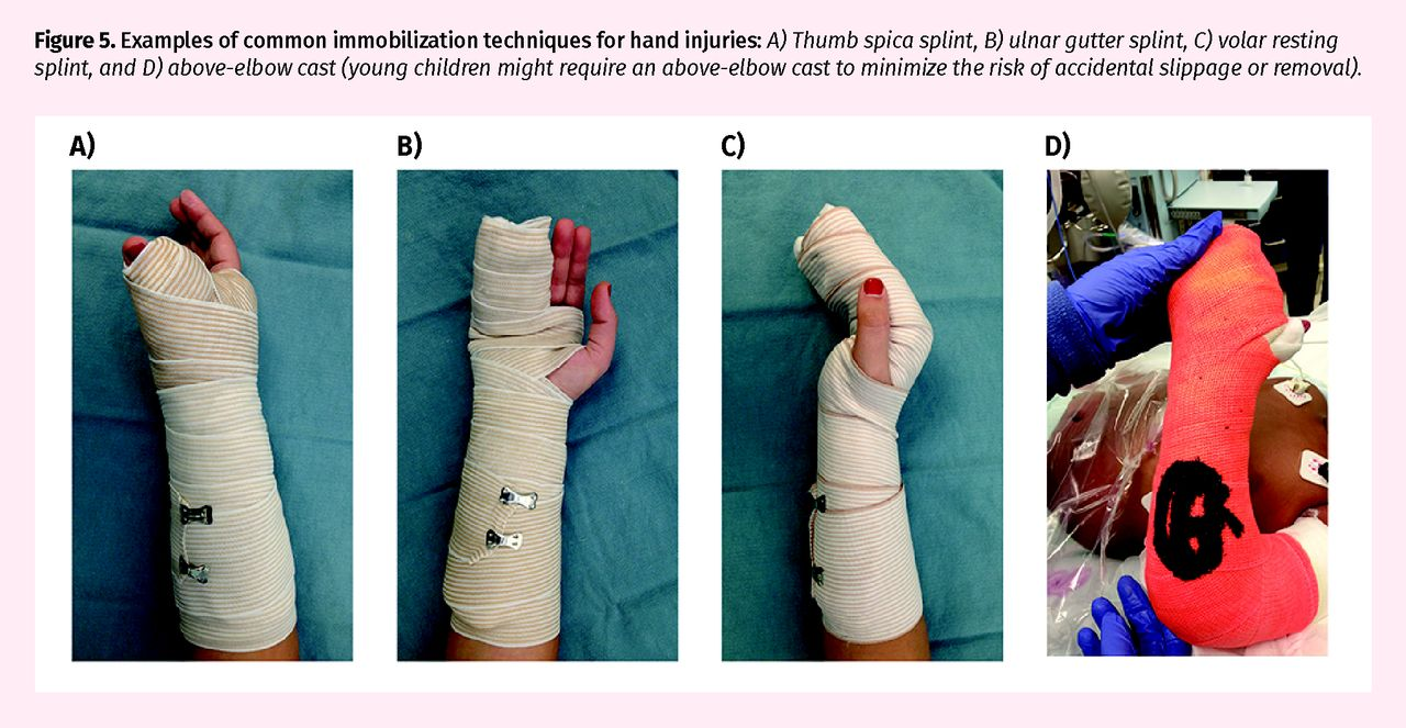 Pediatric Hand Injuries The College Of Family Physicians